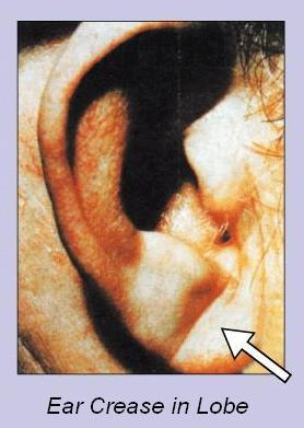 Earlobe Crease Photos http://www.ireflexology.com/ear-crease-early-warning-sign-of-a-heart-attack/